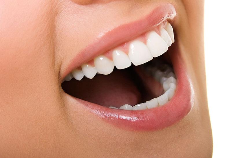 Mejorar los dientes mediante el contorneado estético