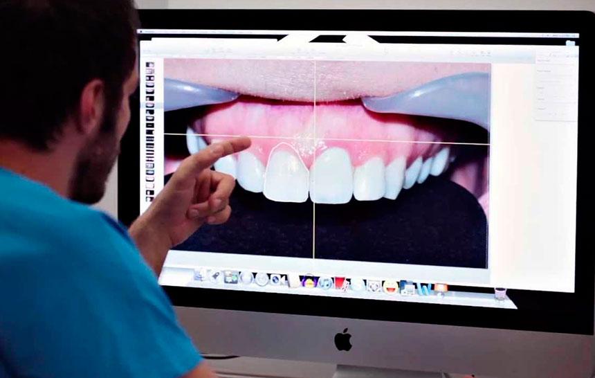 ¿Conoces el diseño de la sonrisa digital?