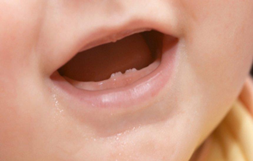 La dentición en la etapa infantil