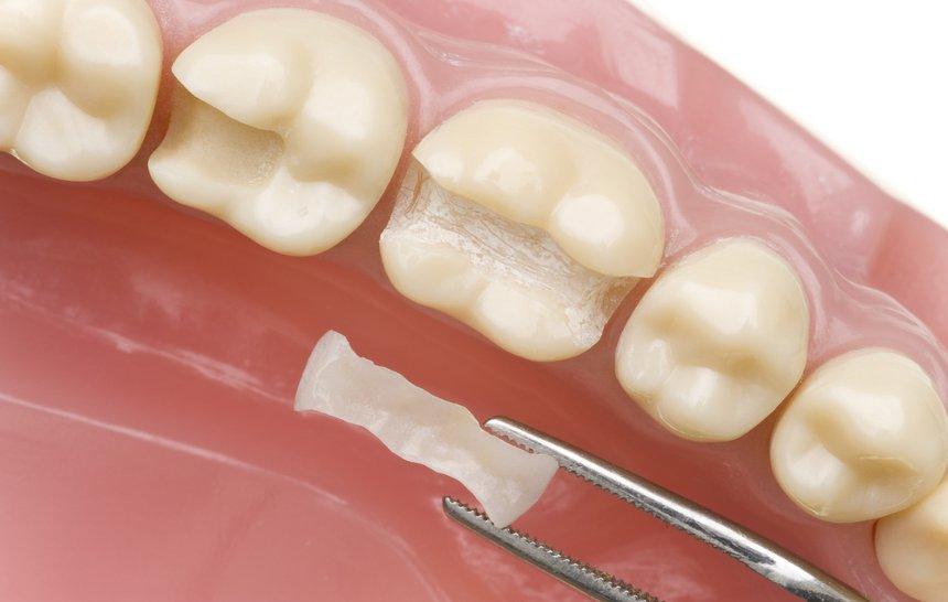 ¿Cuánto dura un empaste dental?