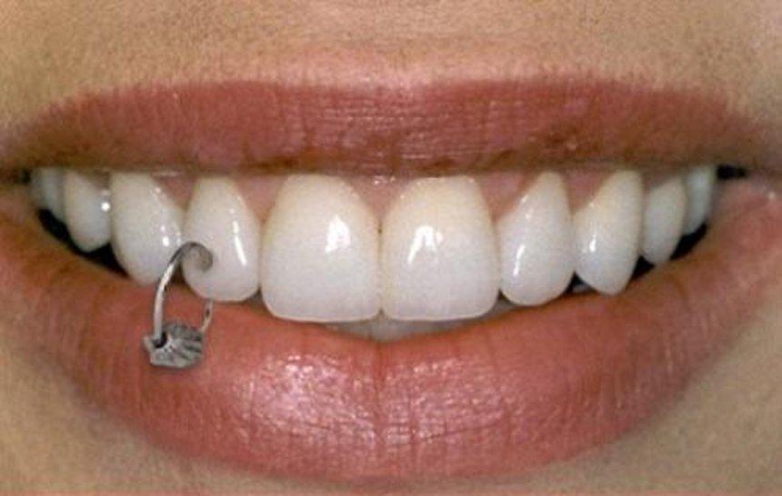 El peligro de las decoraciones dentales