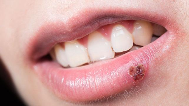 Herpes labial: síntomas y causas